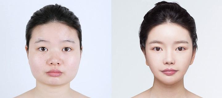 Plastická operace obličeje
