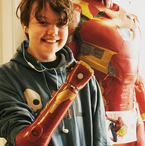 Třináctiletá Raimi se bez ruky narodila.
