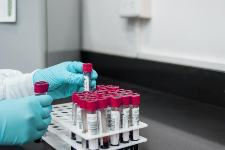Zkumavky s krví v laboratoři