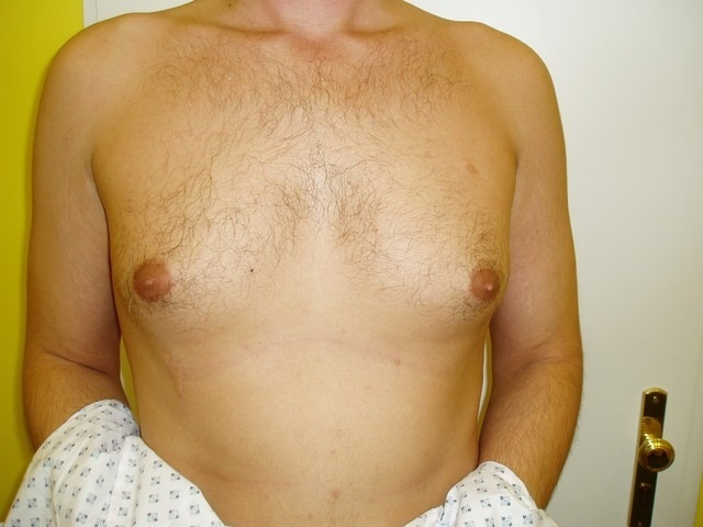 Male enlarged bust? It is becoming a civilization disease.