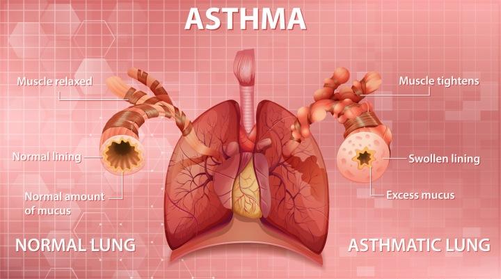 Astma schéma