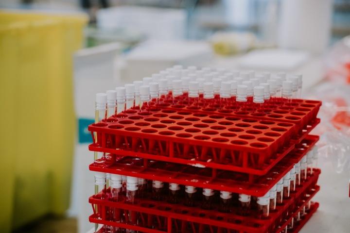 Skladování vakcín v laboratoři