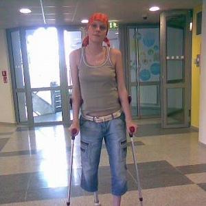 Naučila se chodit s protézou.