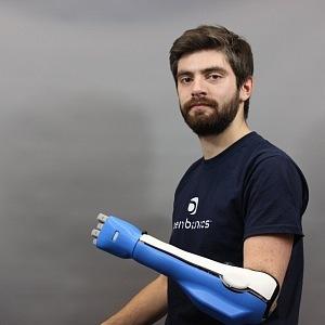 Luke byl jeden z prvních testerů bionické ruky.