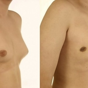 Men should not only stop sweating, they should also take care of their chest
