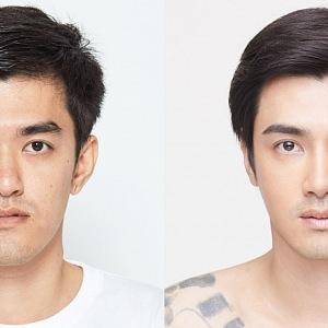 Plastická operace muže v Jižní Koreji