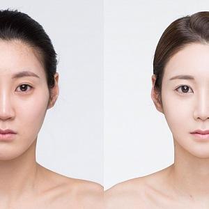 Plastická operace ženy v Jižní Koreji
