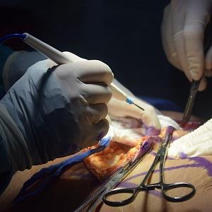 Chirurgický zákrok na sále