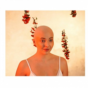 Aničku rakovina změnila.